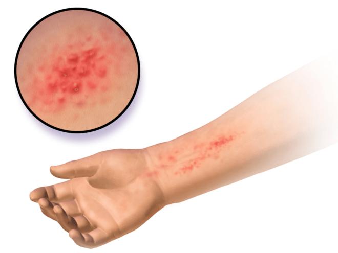 Виды крапивницы и причины формирования дерматитов, покраснения на ноге или руке, животе