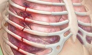 Перелом ребра: что делать?