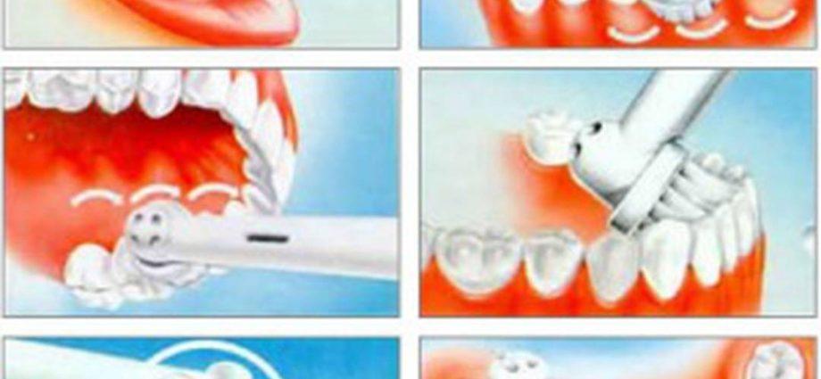 Электрическая зубная щетка при коронках