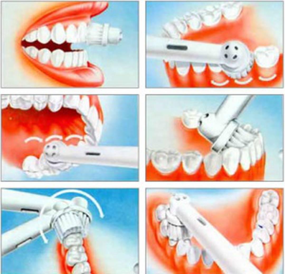 Болезни от электрических зубных щеток
